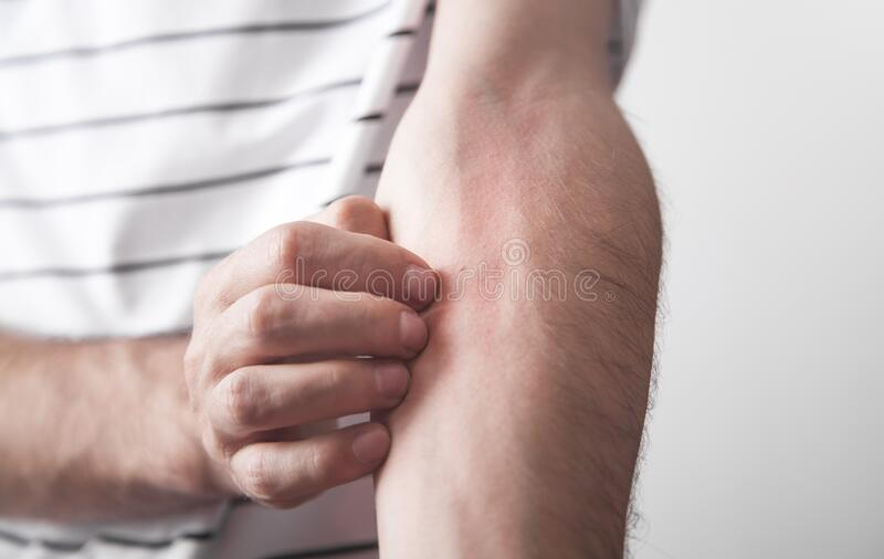 Caucasian man scratching hand with allergy stock photo