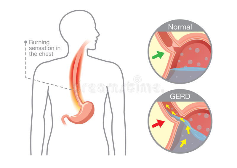 Cause of gastroesophageal reflux disease in human stomach vector illustration