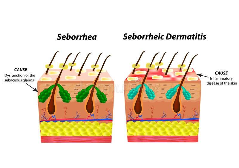 Cause la peau et les cheveux de Seborrhea Dermatite seborrheic de pellicules ecz?ma Dysfonctionnement des glandes s?bac?es illustration stock