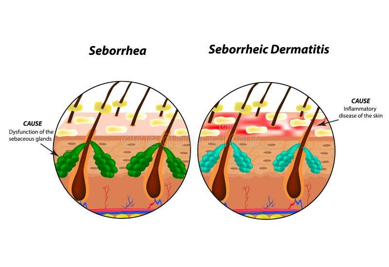 Cause la peau et les cheveux de Seborrhea Dermatite seborrheic de pellicules ecz?ma Dysfonctionnement des glandes s?bac?es illustration de vecteur