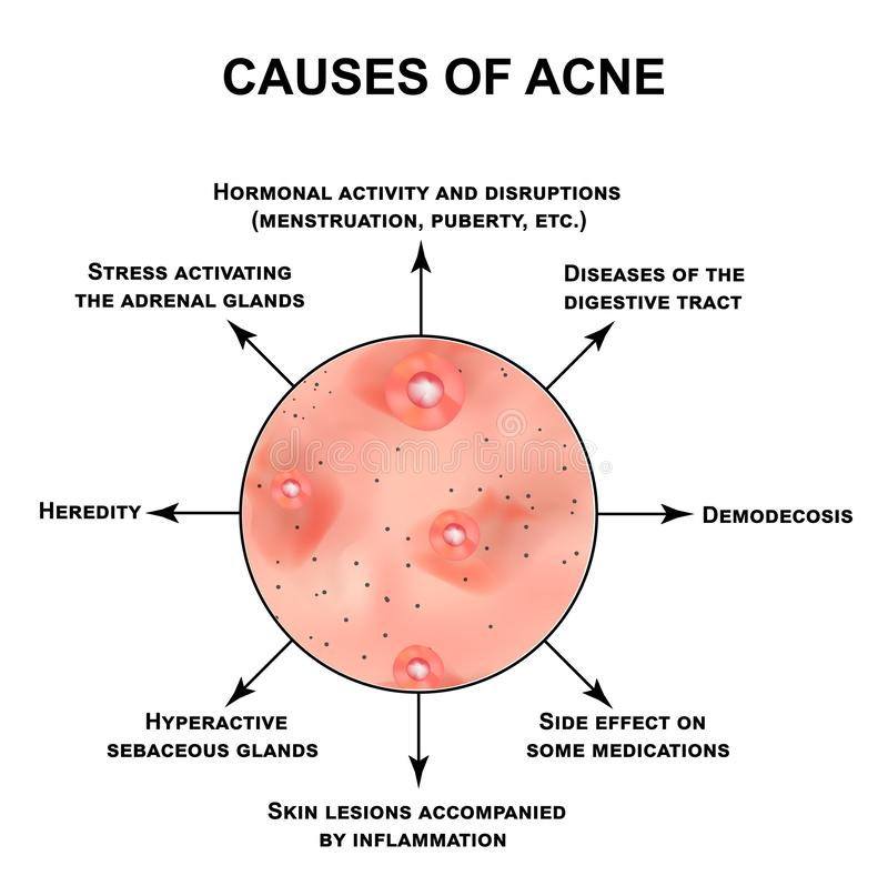 Causes of acne. Pustules, papules, comedones, blackheads, acne on the skin. Infographics. Vector illustration on vector illustration