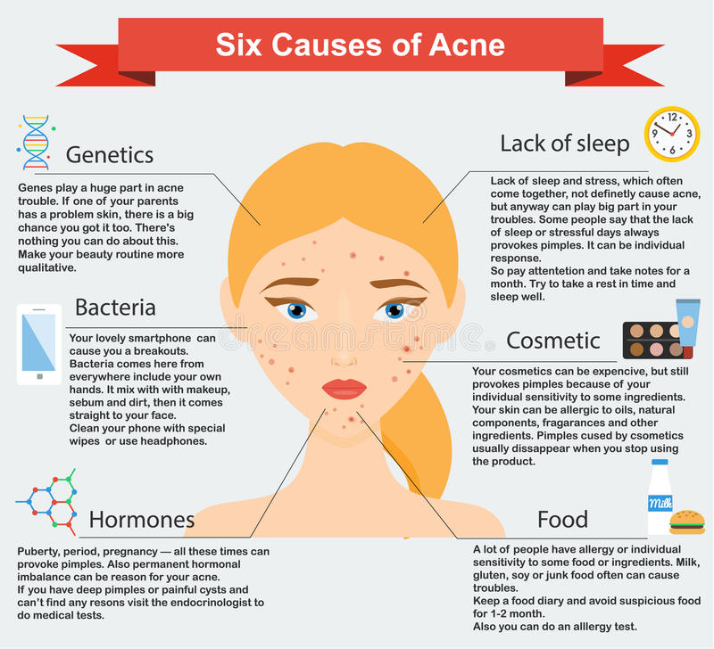 Causes of acne. Skin problems and diseases beauty infographics. Vector illustration. Dermatology, skin care infographic stock illustration