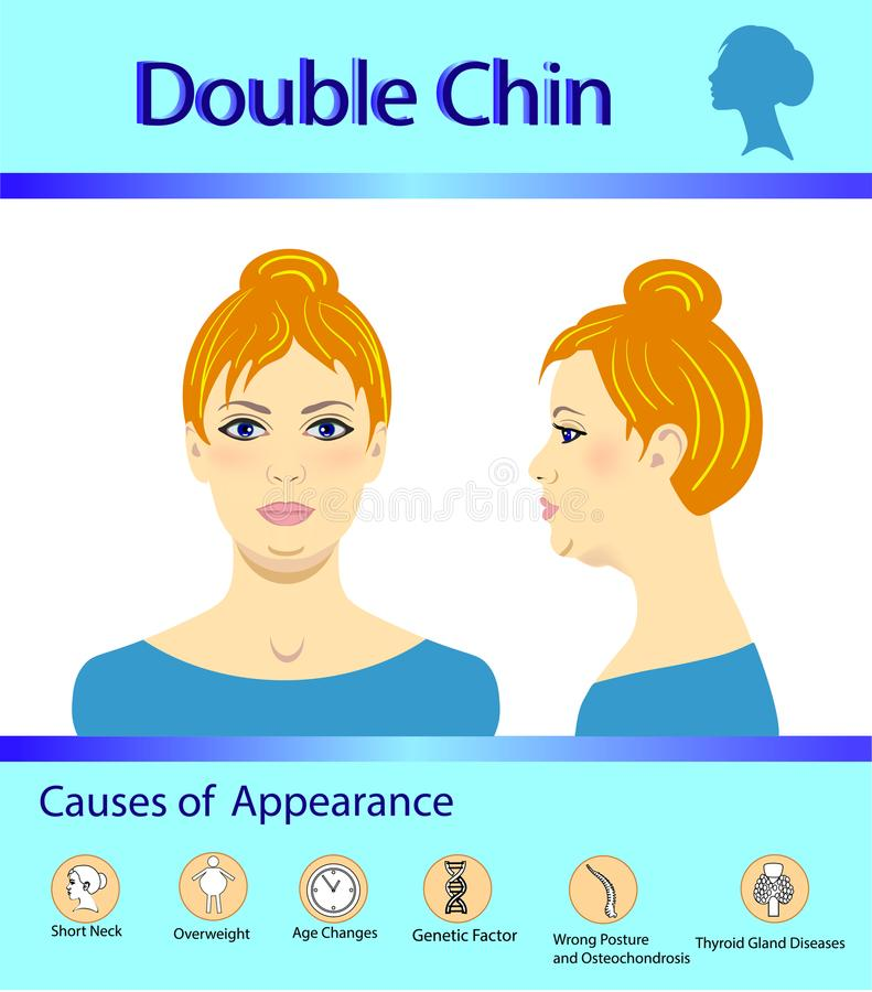 Causes of double chin, vector illustration diagram stock illustration