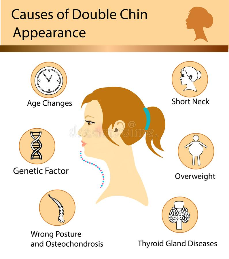 Causes of double chin. Vector illustration diagram royalty free illustration