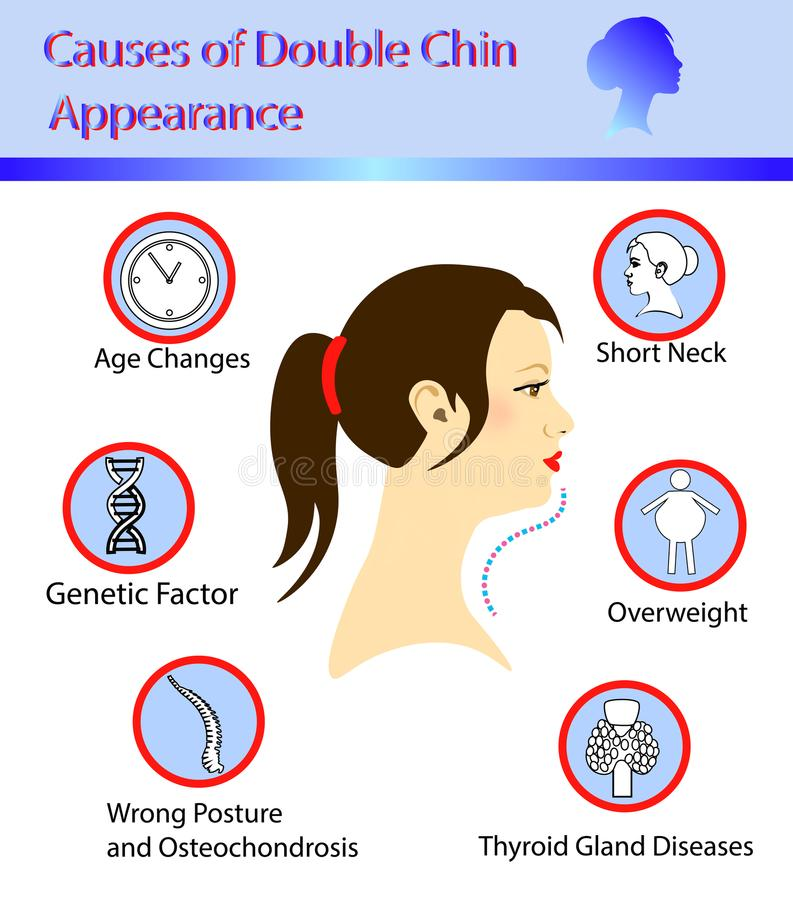 Causes of double chin. Vector illustration diagram vector illustration