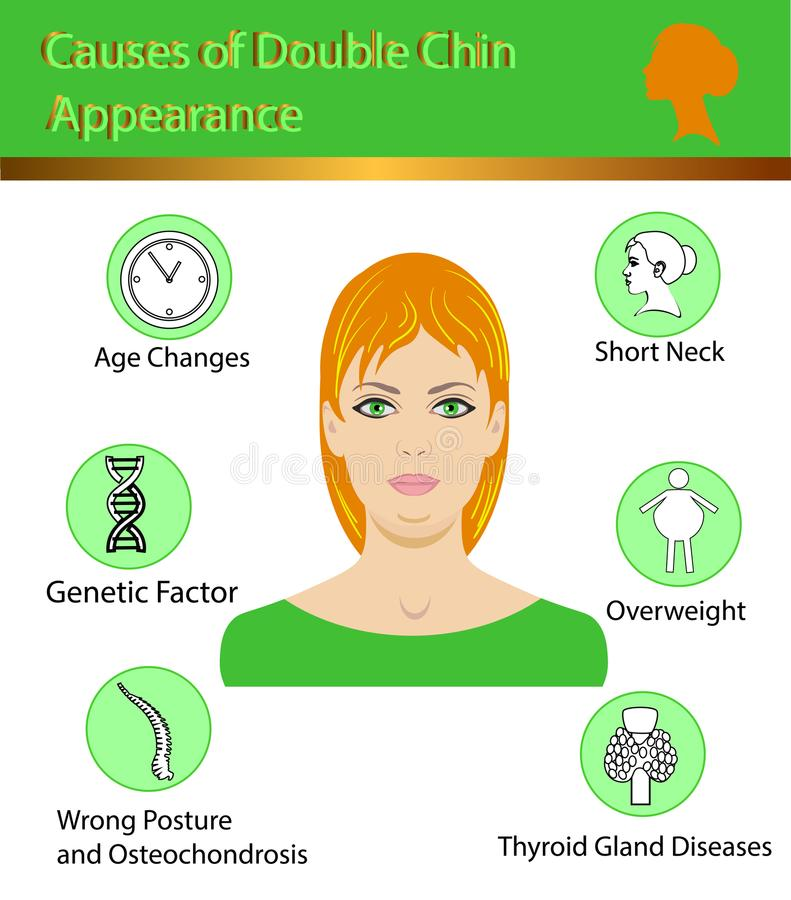 Causes of double chin, vector illustration diagram royalty free illustration