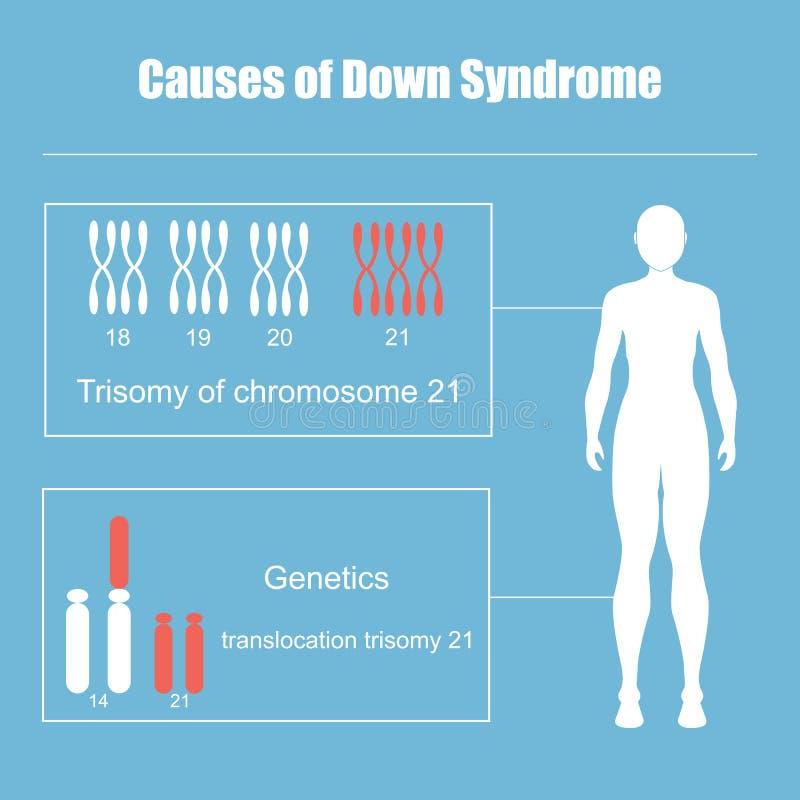 Causes du syndrome de Down illustration libre de droits