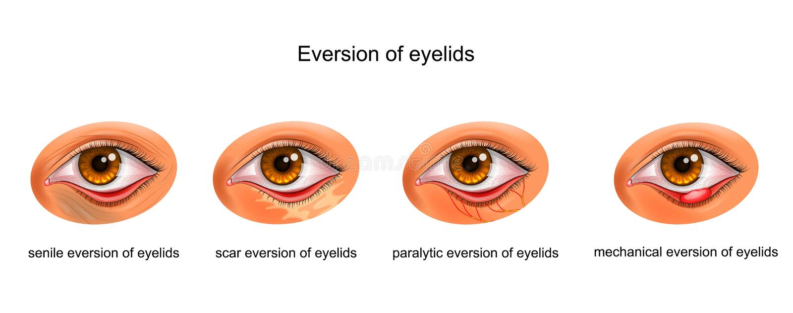 The causes of eversion of eyelids. Vector illustration of the cause of the eyelid stock illustration