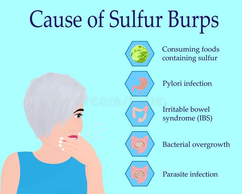 Causes of Sulfur Burps. Vector illustration stock illustration