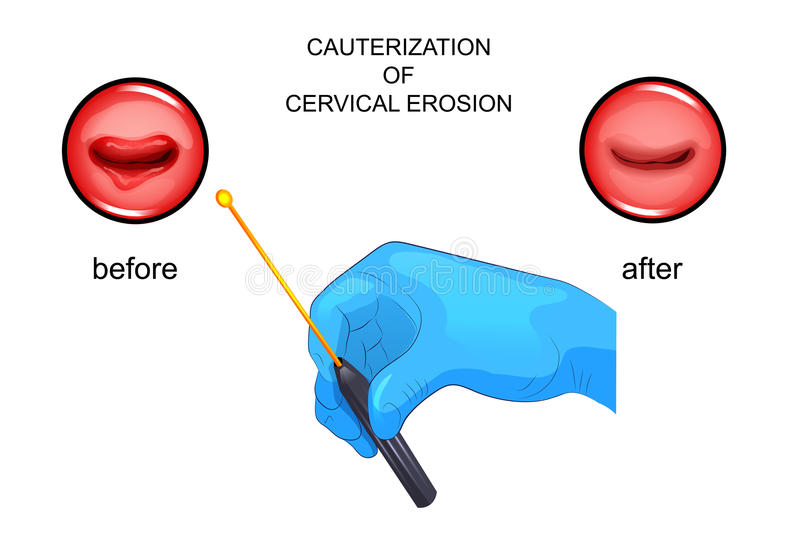 Cauterization of erosion. before and after. Vector illustration of cauterization of erosion. before and after vector illustration