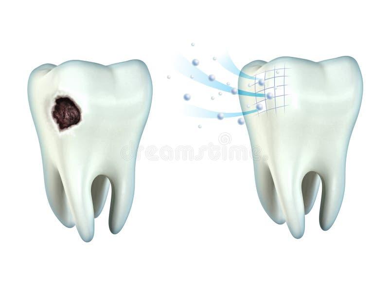 Cavidad de los dientes stock de ilustración. Ilustración de dental ...