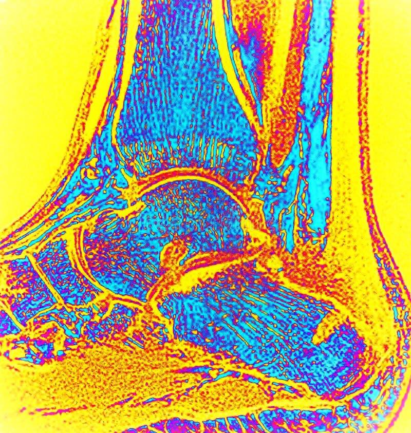 Caviglia giusta dopo il mri di deformità del haglund della chirurgia immagine stock libera da diritti