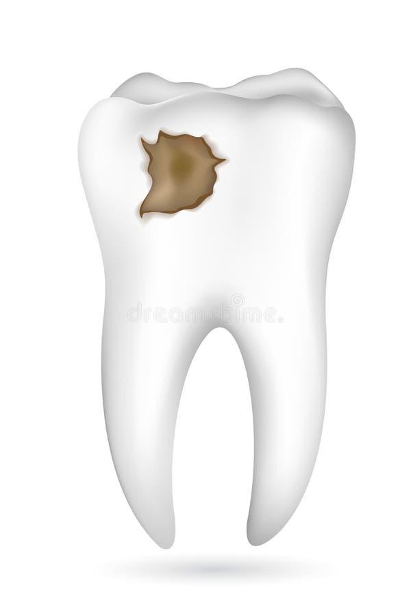 Cavité dans la dent illustration de vecteur