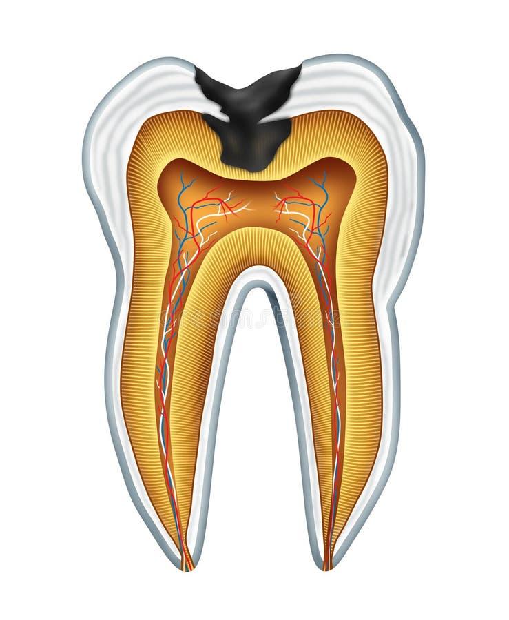Cavité de dent illustration libre de droits