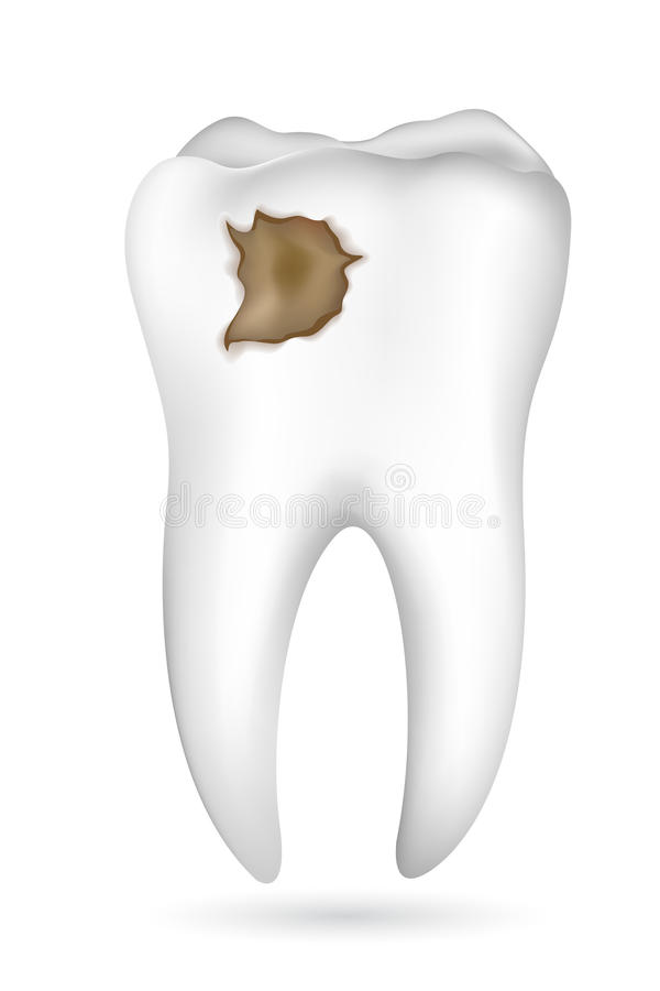 Cavity in Tooth vector illustration