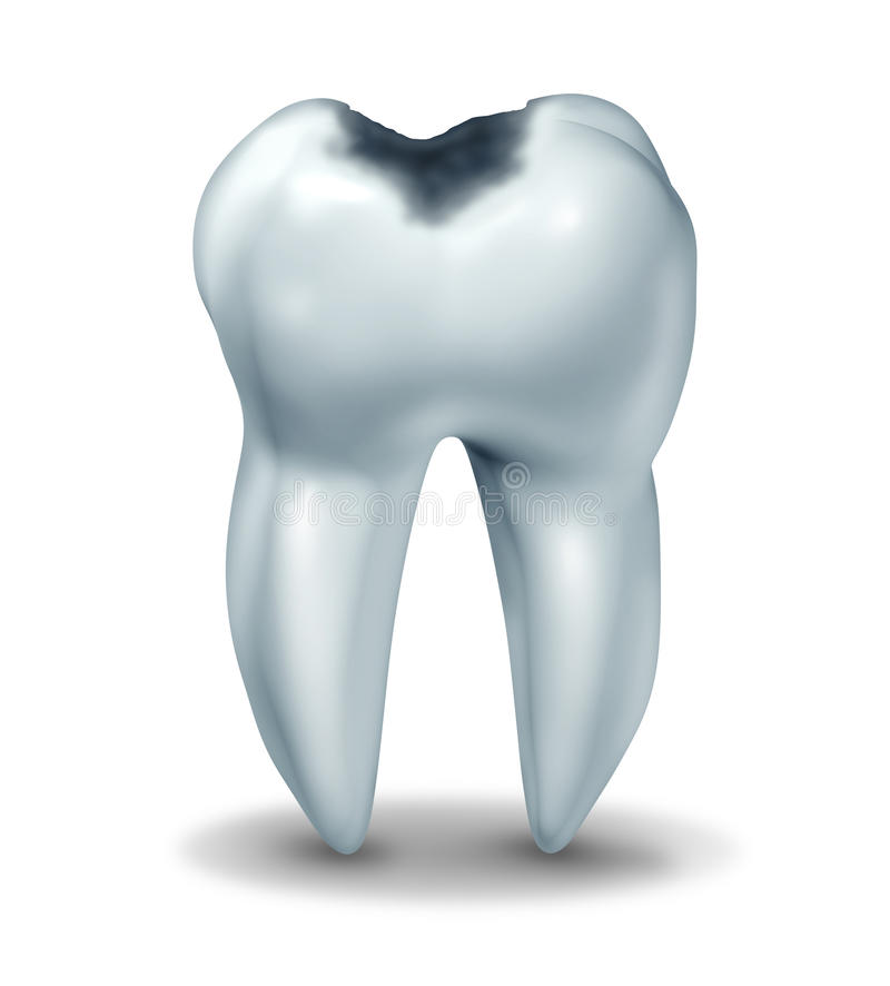 Cavity tooth decay disease symbol. Tooth cavity symbol showing the medical anatomy of teeth with a cavity in decay due to bacteria and acids in oral health care royalty free illustration