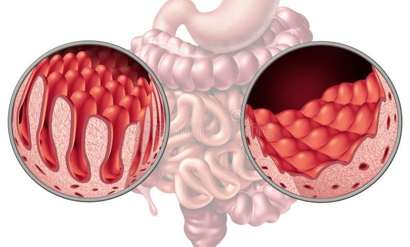 Celiac Coeliac inälvasjukdom stock illustrationer