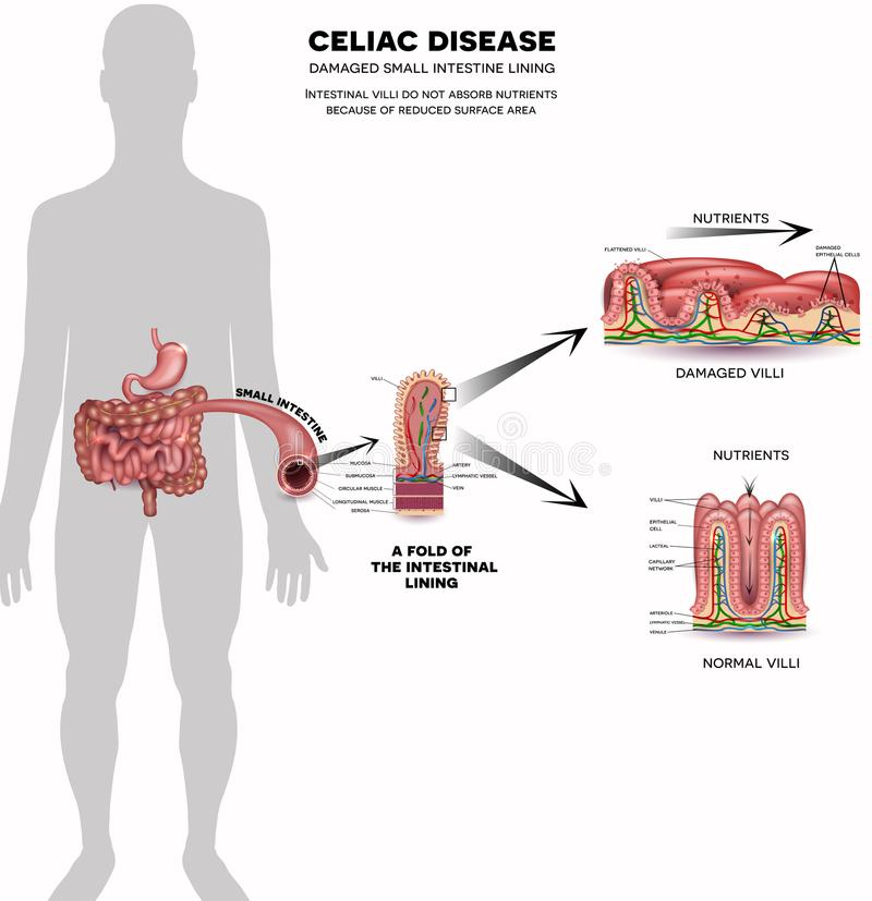 Celiac disease info poster royalty free illustration