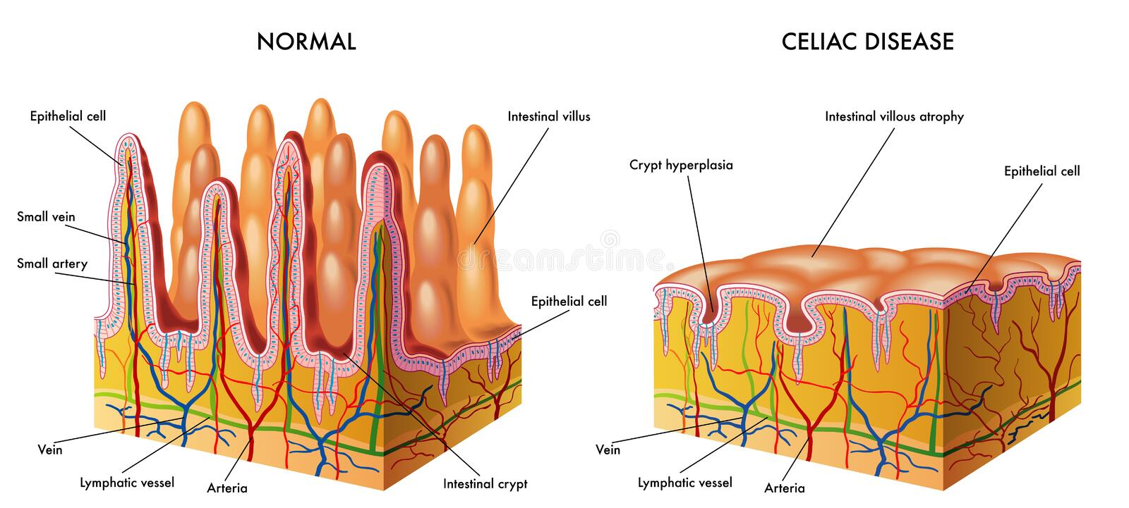 Celiac disease. Medical illustration of the modification of the intestinal mucosa in celiac subject