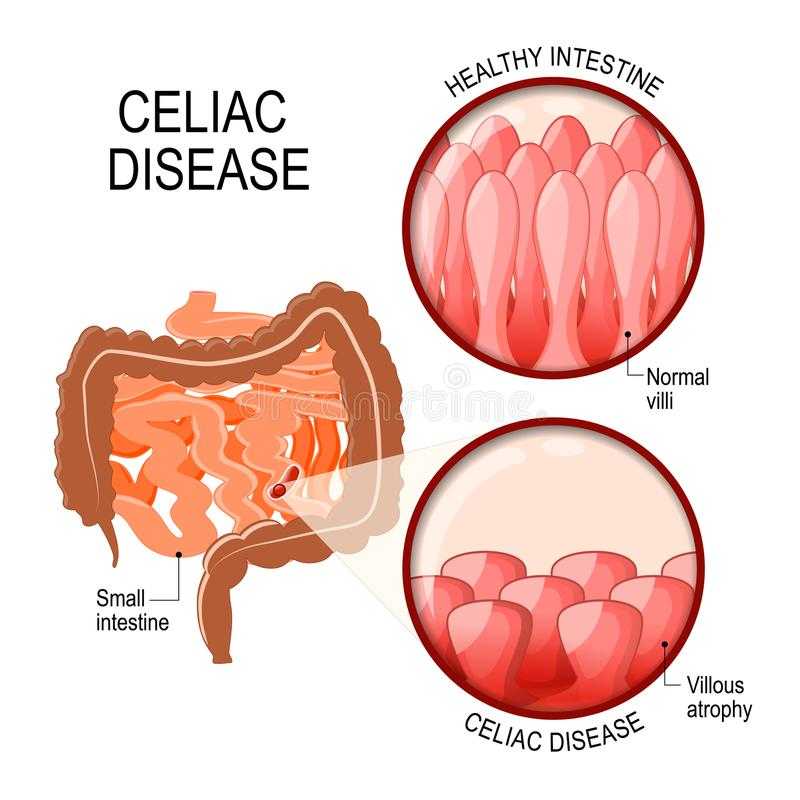 Free Celiac Disease. Small Intestinal With Normal Villi, And Villous Stock Photo - 107750040
