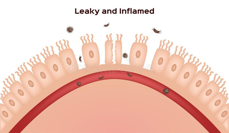 Celiac disease Small intestine lining damage. good and damaged villi . leaky gut progression vector illustration
