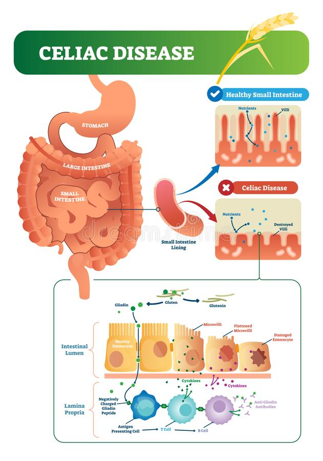 Celiac disease vector illustration. Labeled diagram with its structure. Autoimmune illness in stomach and intestine. Scheme with nutrients, healthy and vector illustration