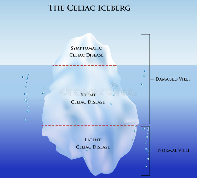 Free Celiac Iceberg Stock Photography - 19457382
