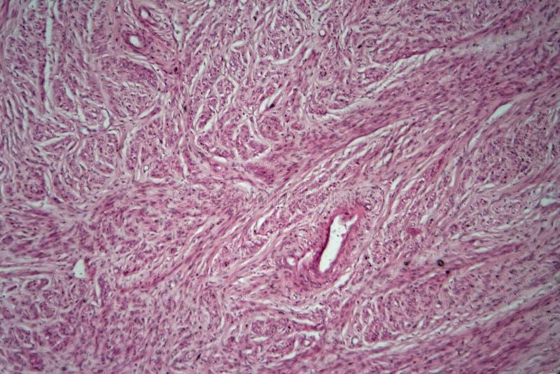 Cellen van een menselijke baarmoeder met baarmoederfibroids stock afbeelding