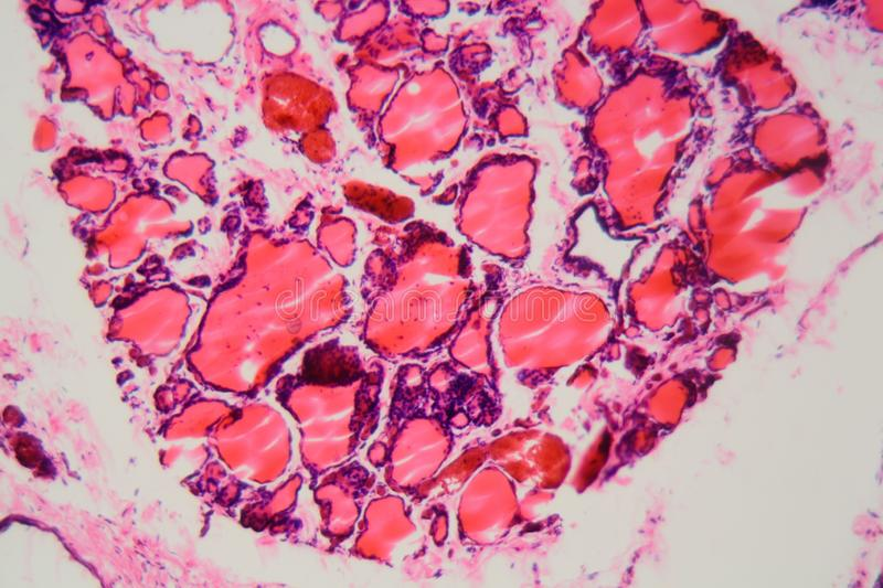 Human thyroid gland with goiter caused by deficiency of iodine under a microscope. Cells of a human thyroid gland with goiter caused by deficiency of iodine stock photo