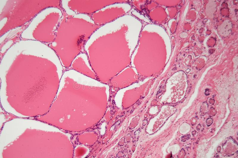 Cells of a human thyroid gland with swelling under a microscope. Cells of a human thyroid gland with swelling goitre under a microscope stock photography