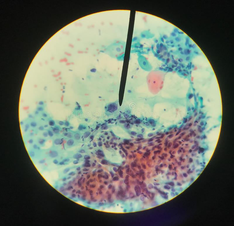 Cells in reproductive female cytology and histology concept stock images