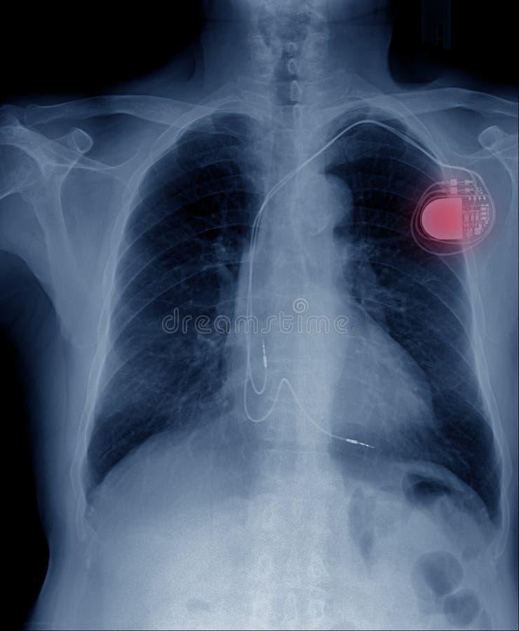 cellula di stimolatore cardiaco fotografie stock libere da diritti