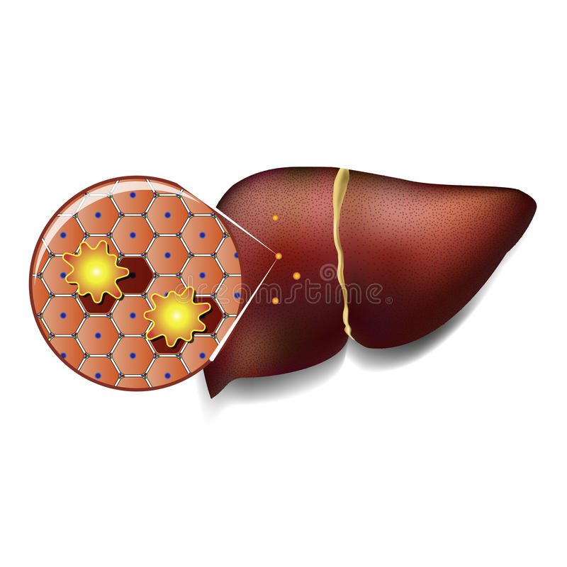 Cellule di fegato attaccate dalle tossine illustrazione vettoriale
