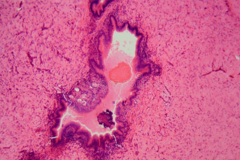 Cellule di fegato di un rabit con i parassiti dei coccidi fotografia stock libera da diritti