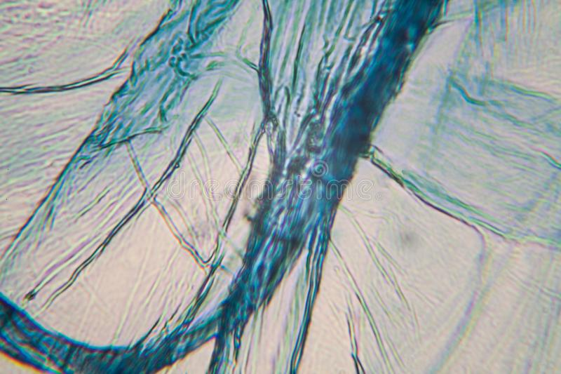 Cellules d'oignon au microscope photo stock