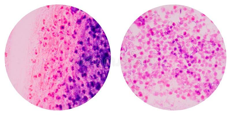Cellules de bactéries sur le gramme image stock