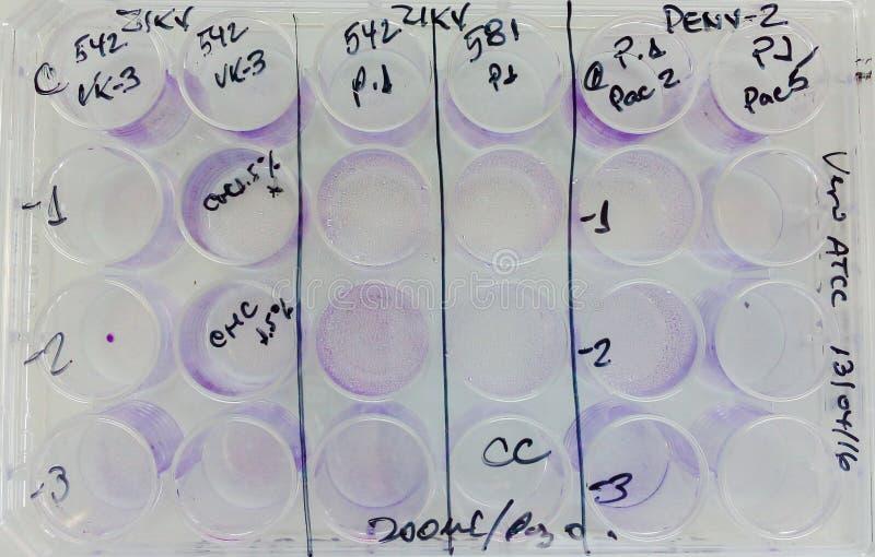 Cellules infectées par virus expérimental d'incubation de plat image libre de droits