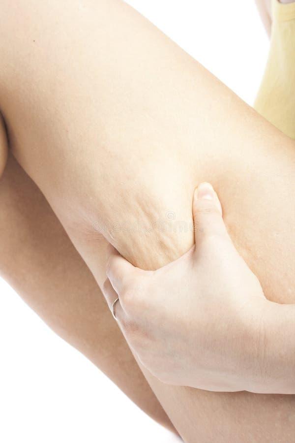 cellulite εμφανίζοντας νεολαίε&si στοκ εικόνες με δικαίωμα ελεύθερης χρήσης