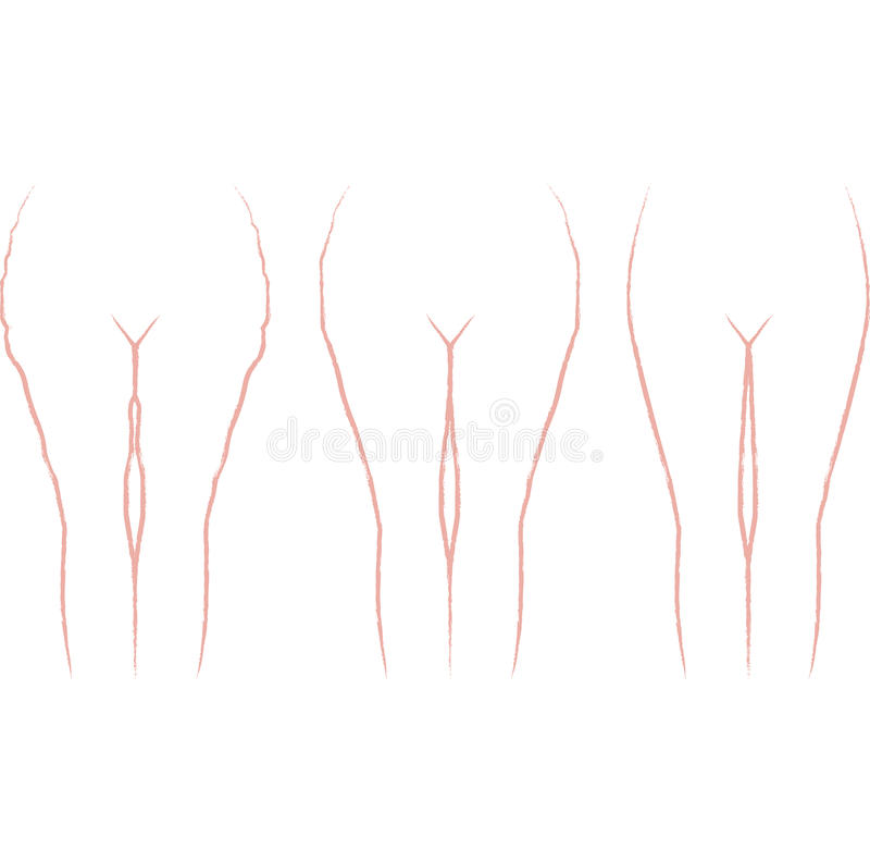 cellulite royaltyfri illustrationer