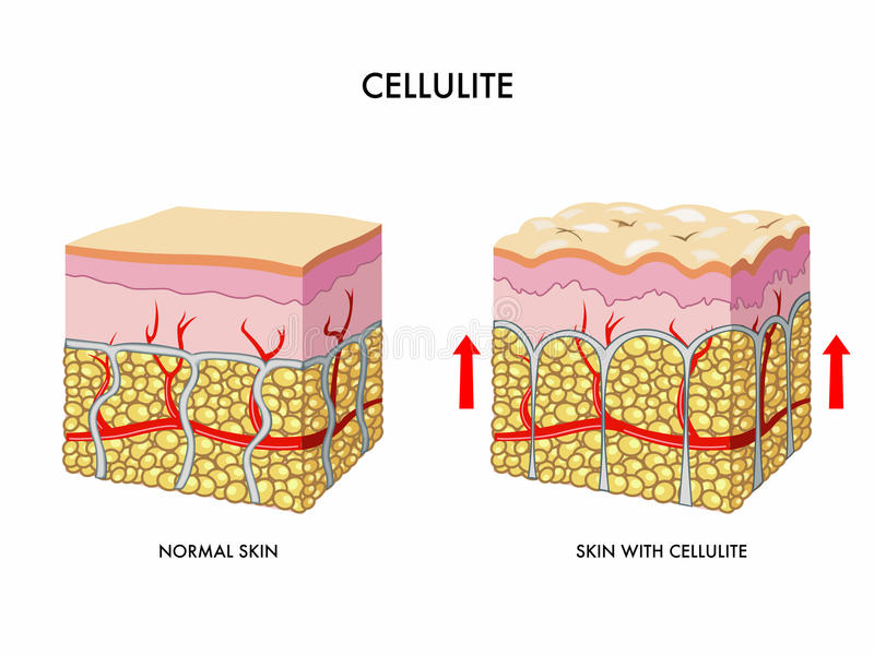 cellulite stock illustrationer
