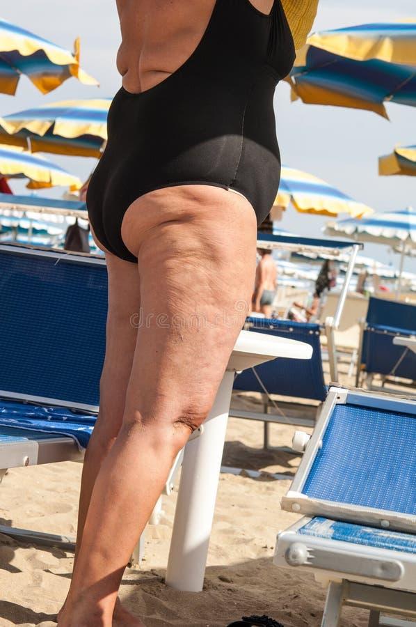 Cellulite fotografia stock