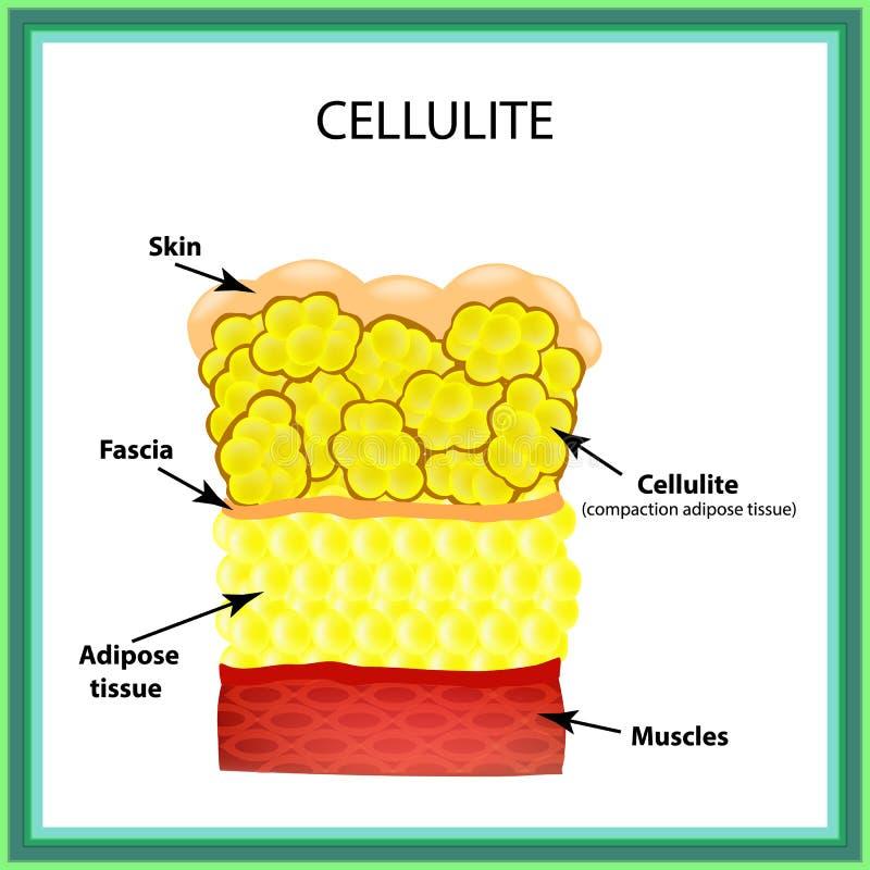 cellulite A estrutura anatômica do tecido adiposo Infographics Ilustração do vetor no fundo isolado ilustração royalty free