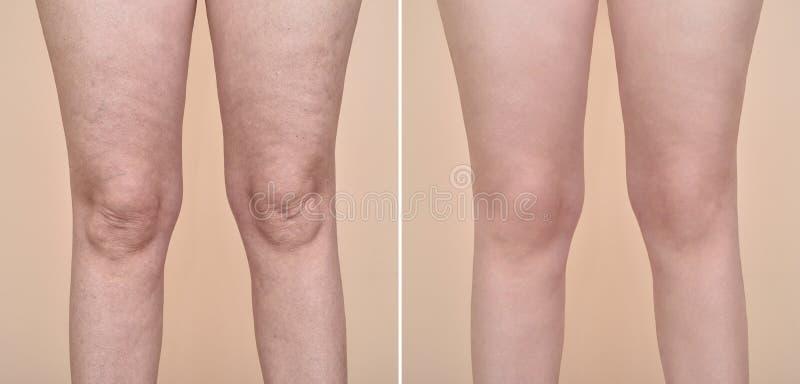 Cellulite för kvinna före och efter royaltyfria bilder