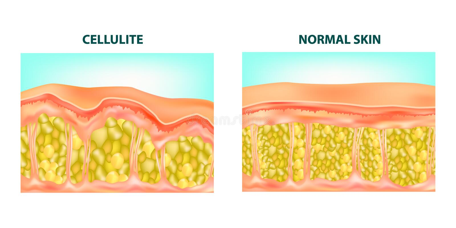 Cellulite formation. vector illustration