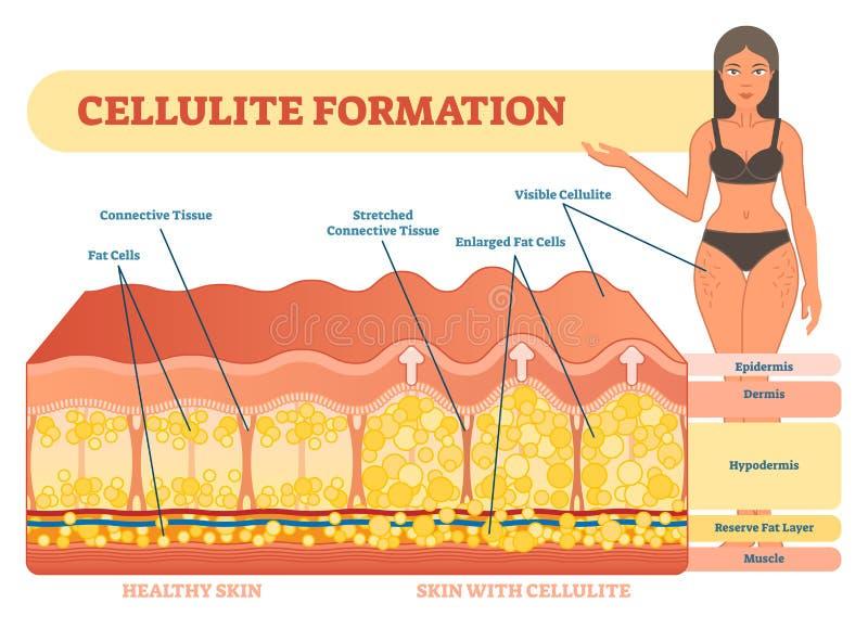 Cellulite formation vector illustration diagram, medical information scheme. Womans beauty and skicare stock illustration