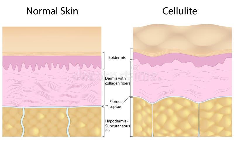 Cellulite gegen glatte Haut stock abbildung