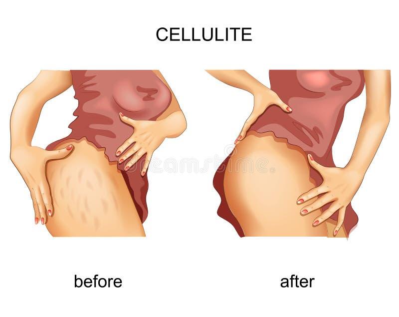Cellulite op een vrouwens dij royalty-vrije illustratie