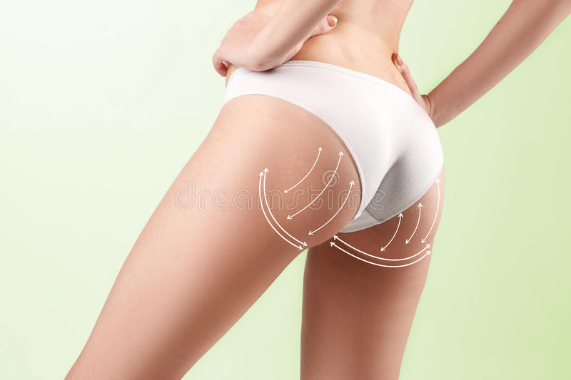 The cellulite removal plan. White markings on young woman body royalty free stock photos