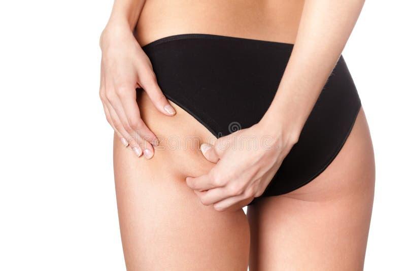 Cellulite skin stock photo
