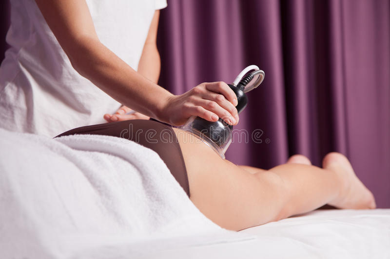 Cellulite treatment royalty free stock image